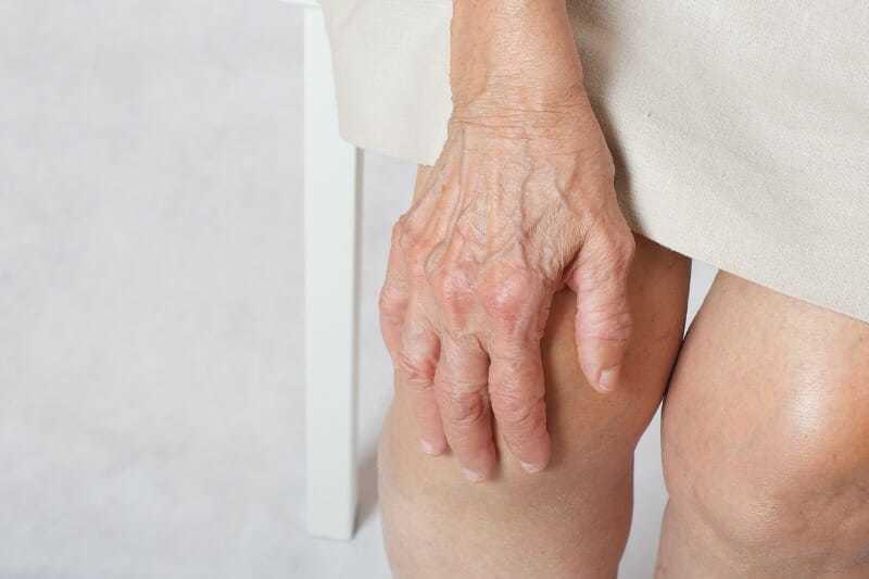 Superficial Thrombophlebitis vein treatment