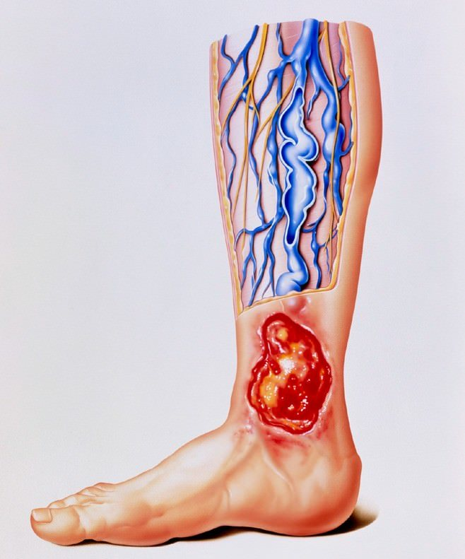 Venous Stasis Ulcers