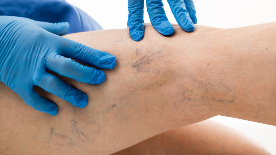 Visual signs of Spider Veins