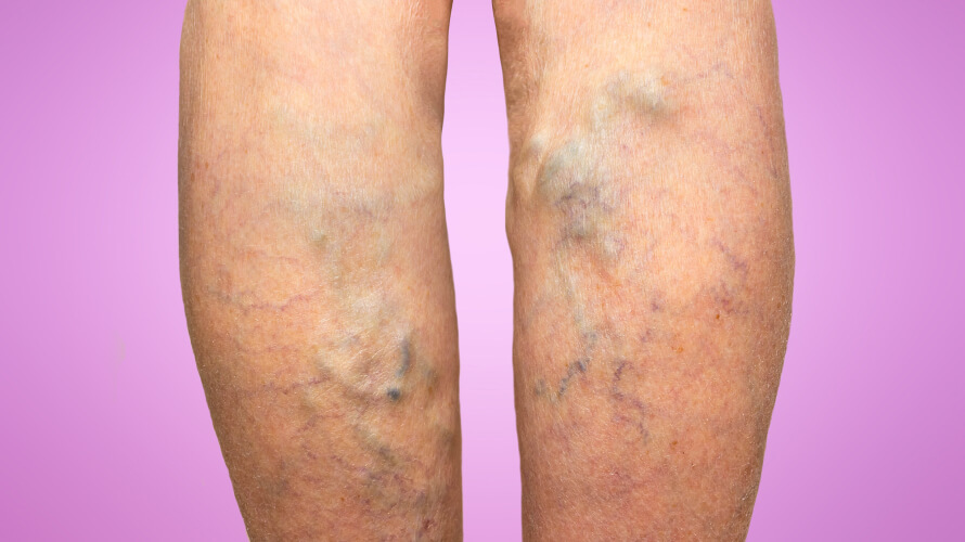 Visual signs of Varicose Veins