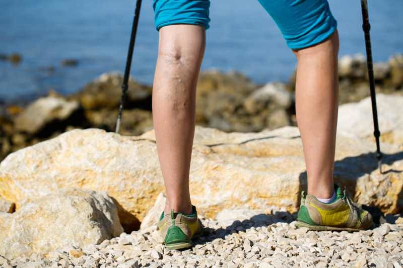 beautiful legs outdoor hiking