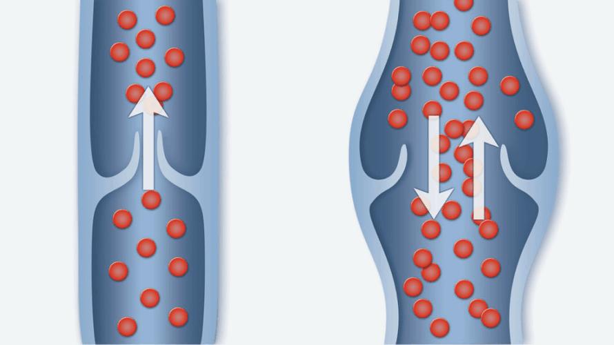 Inline vein diagram