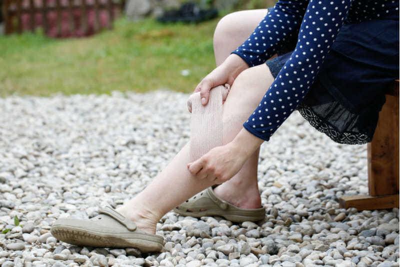 legs lady vein treatment
