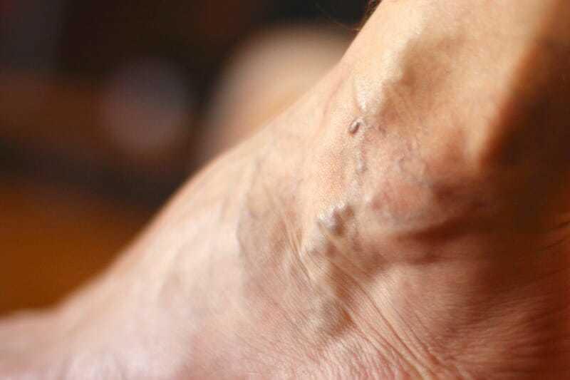 Superficial vein thrombosis