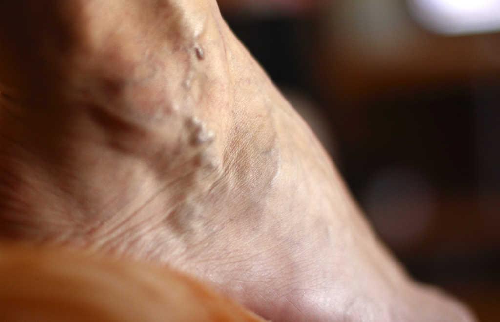 Varicose veins heal