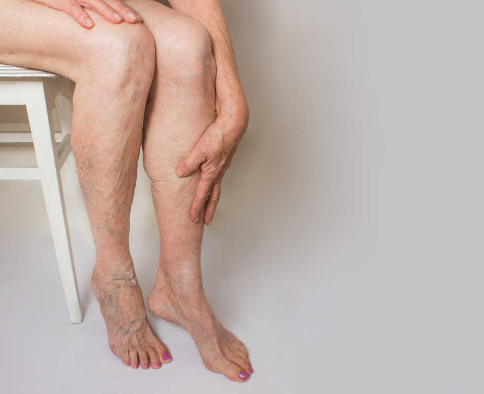 veins in feet and legs